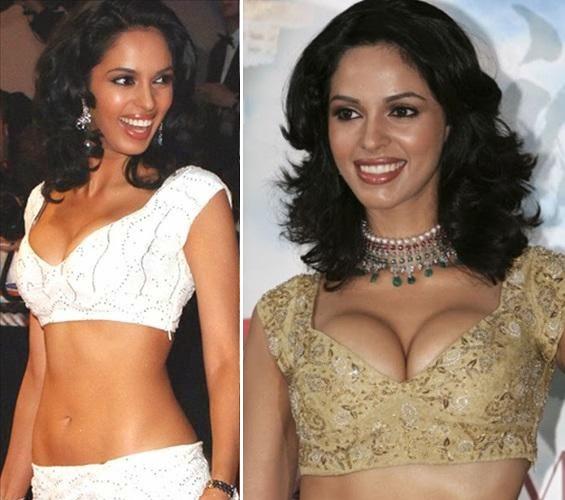 Mallika Sherawat Breast Implant Surgery