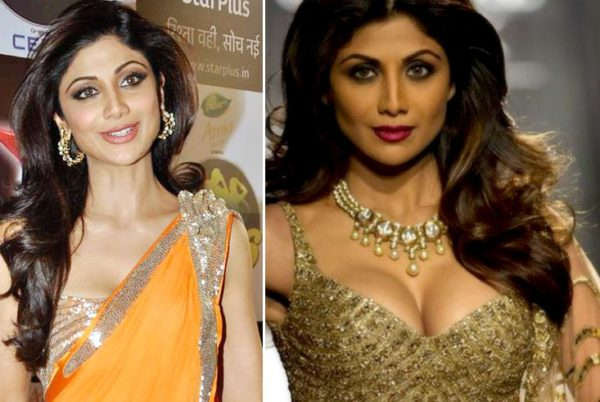 Shilpa Shetty Breast Implant Surgery